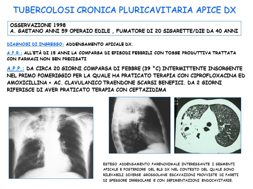 TUBERCOLOSI CRONICA PLURICAVITARIA APICE DX