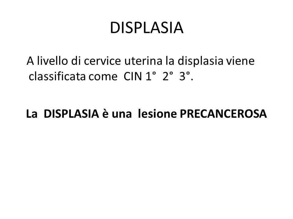 DISPLASIA A livello di cervice uterina la displasia viene classificata come CIN 1° 2° 3°.
