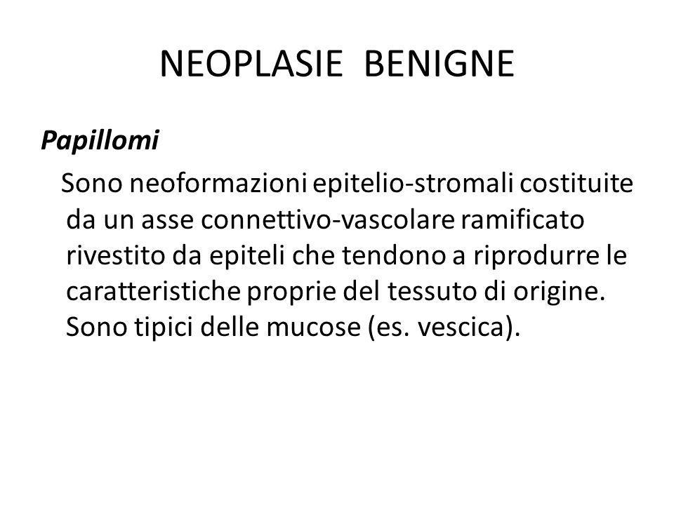 NEOPLASIE BENIGNE