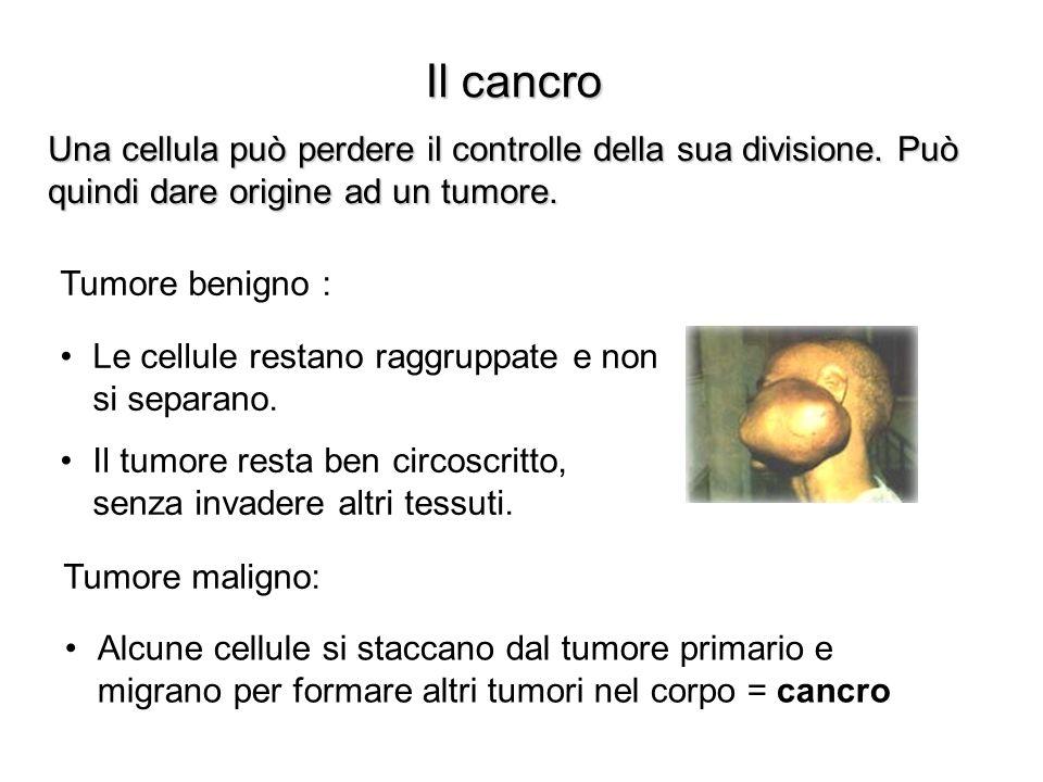 Il cancro Una cellula può perdere il controlle della sua divisione. Può quindi dare origine ad un tumore.