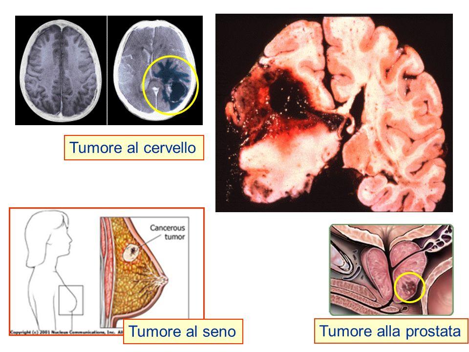 Tumore al cervello Tumore al seno Tumore alla prostata