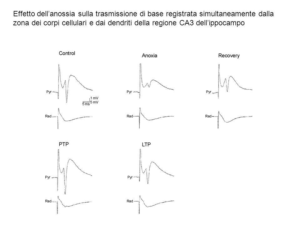 Effetto dell'anossia sulla trasmissione di base registrata simultaneamente dalla zona dei corpi cellulari e dai dendriti della regione CA3 dell'ippocampo