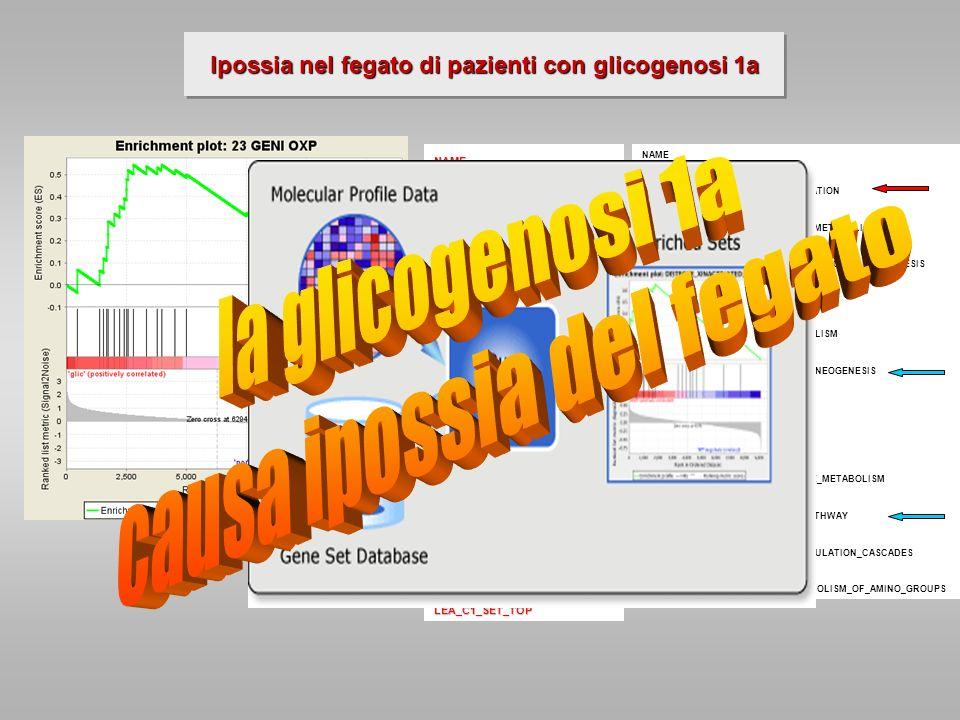 Ipossia nel fegato di pazienti con glicogenosi 1a