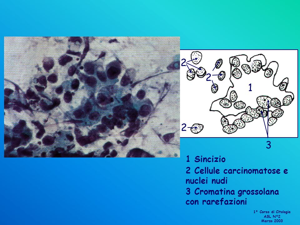 2 1 3 1 Sincizio 2 Cellule carcinomatose e nuclei nudi