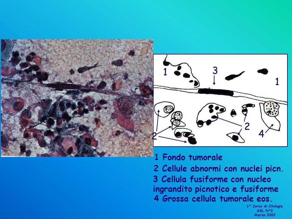 3 1 2 4 1 Fondo tumorale 2 Cellule abnormi con nuclei picn.