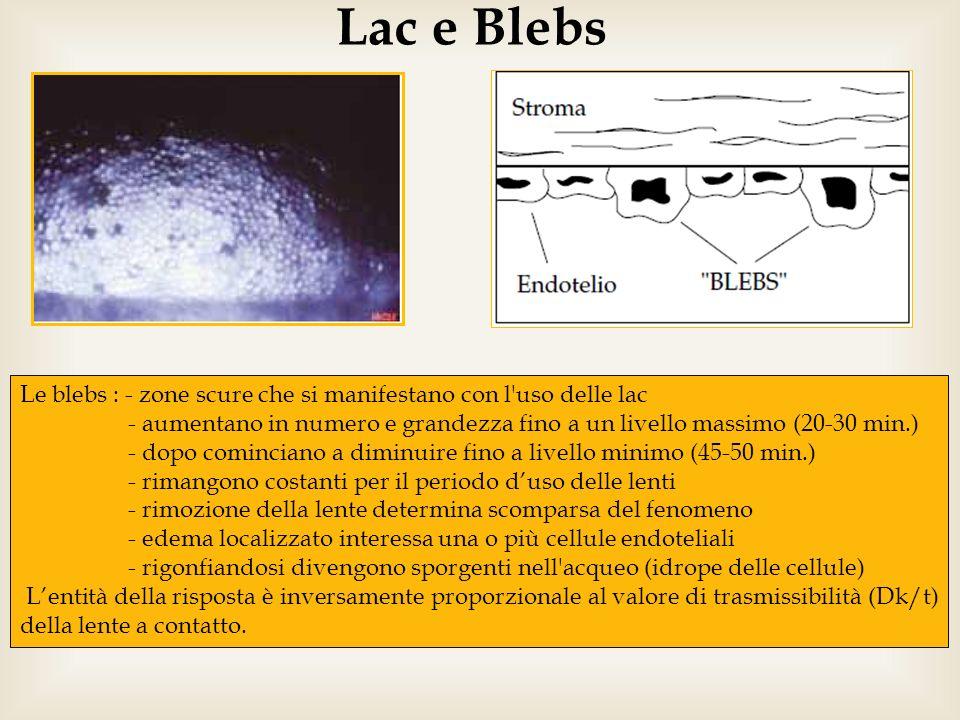 Lac e BlebsLe blebs : - zone scure che si manifestano con l uso delle lac. - aumentano in numero e grandezza fino a un livello massimo (20-30 min.)