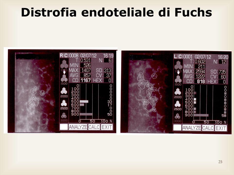 Distrofia endoteliale di Fuchs