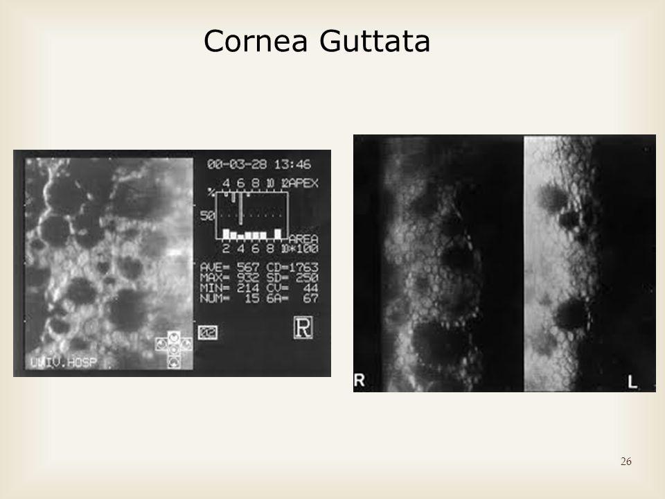 Cornea Guttata