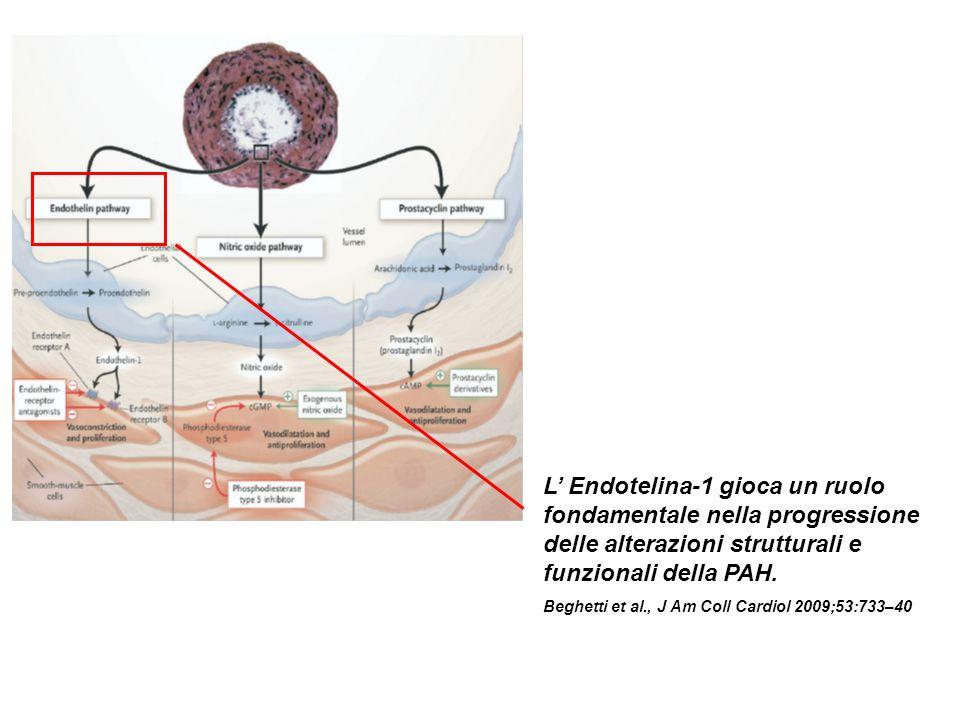 L' Endotelina-1 gioca un ruolo fondamentale nella progressione delle alterazioni strutturali e funzionali della PAH.