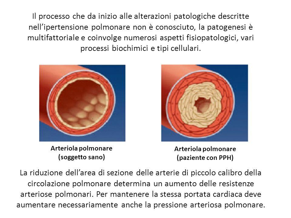 u201cfisiopatologia dell u2019ipertensione arteriosa polmonare