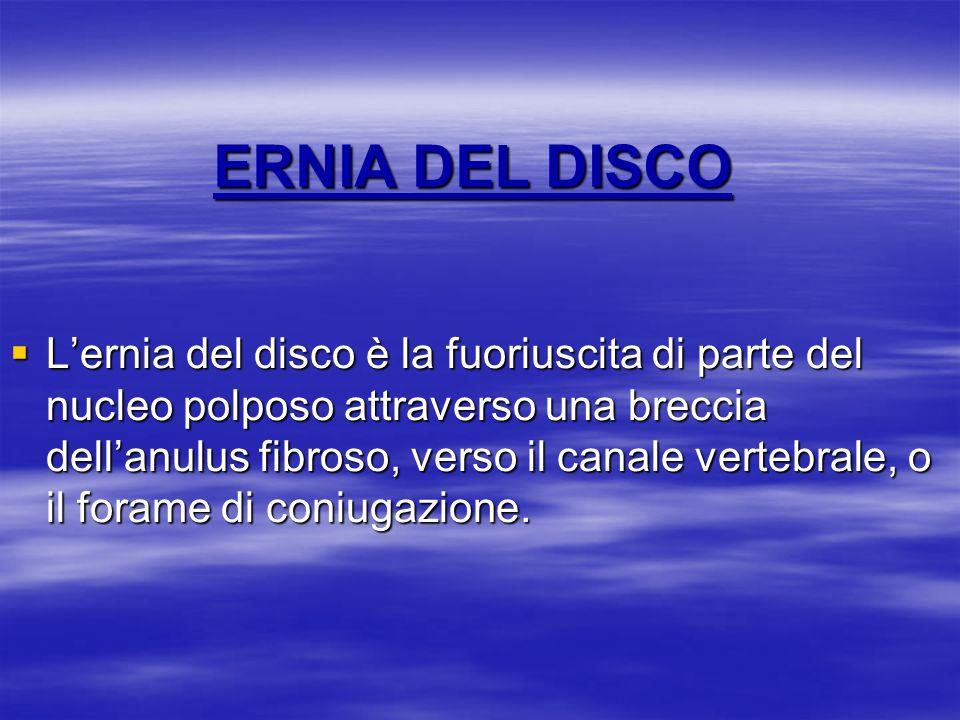 ERNIA DEL DISCO