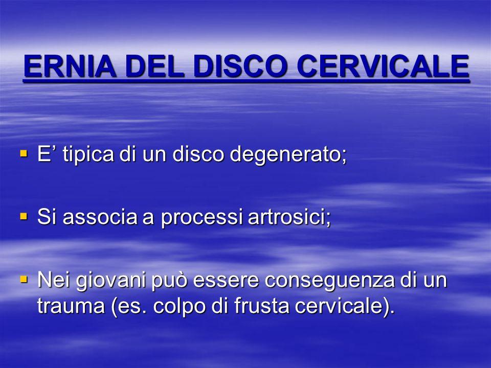 ERNIA DEL DISCO CERVICALE