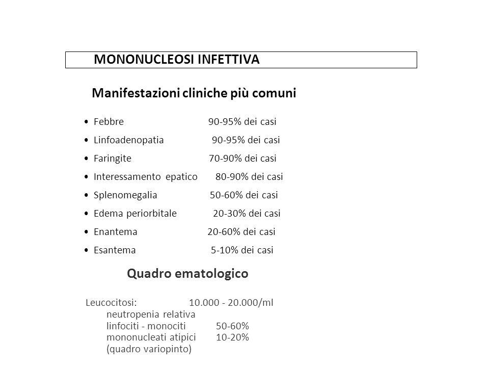 MONONUCLEOSI INFETTIVA Manifestazioni cliniche più comuni