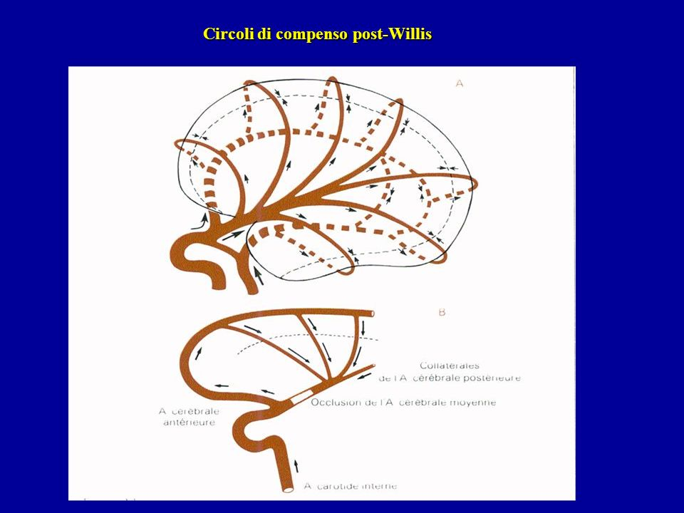 Circoli di compenso post-Willis