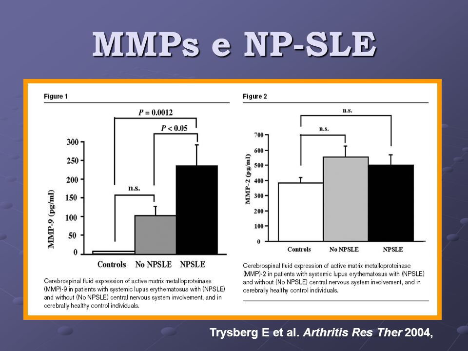 MMPs e NP-SLE Trysberg E et al. Arthritis Res Ther 2004,
