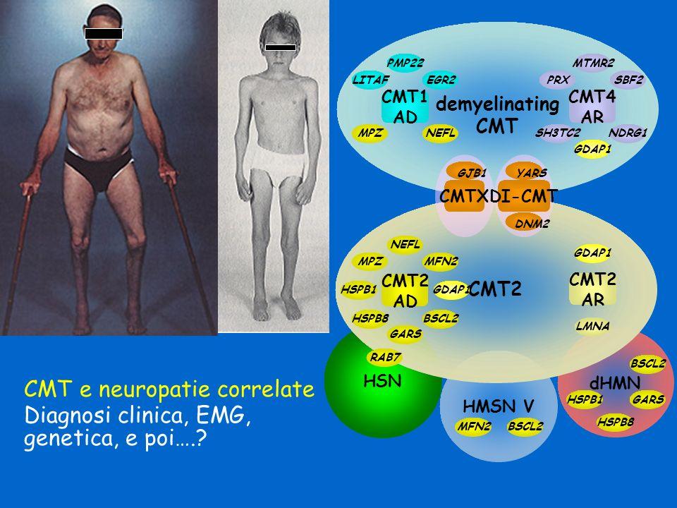 CMT e neuropatie correlate Diagnosi clinica, EMG, genetica, e poi….