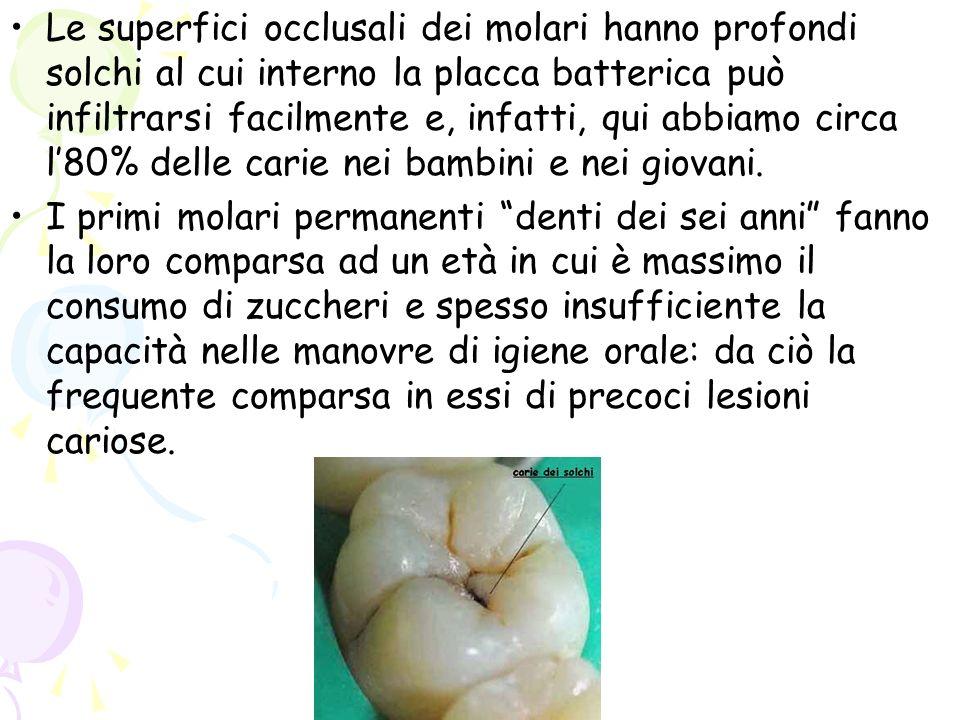 Le superfici occlusali dei molari hanno profondi solchi al cui interno la placca batterica può infiltrarsi facilmente e, infatti, qui abbiamo circa l'80% delle carie nei bambini e nei giovani.