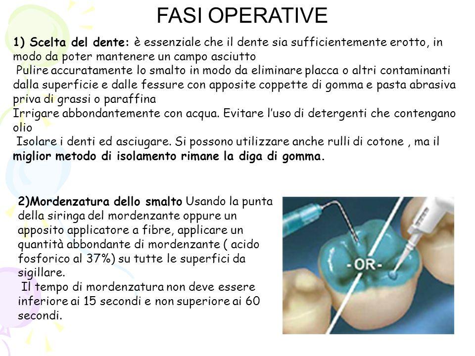 FASI OPERATIVE1) Scelta del dente: è essenziale che il dente sia sufficientemente erotto, in modo da poter mantenere un campo asciutto.
