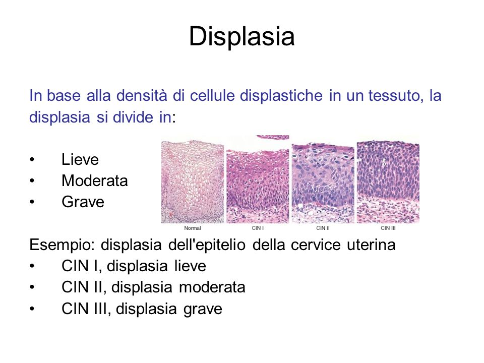 Displasia In base alla densità di cellule displastiche in un tessuto, la. displasia si divide in: Lieve.