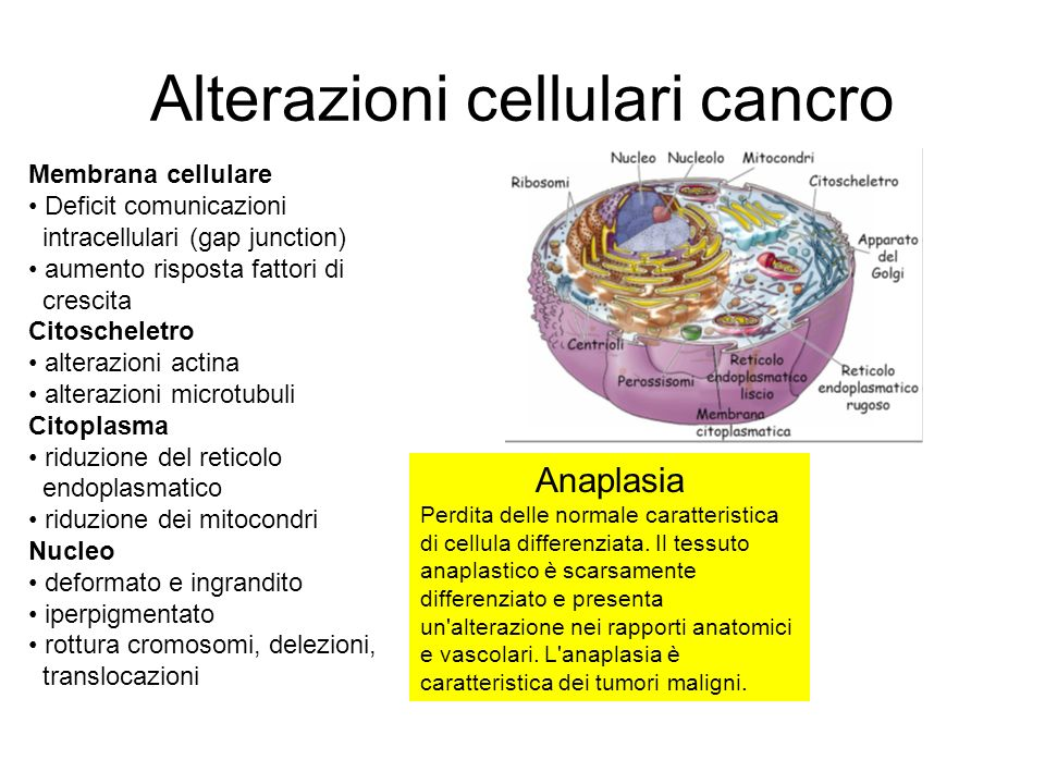 Alterazioni cellulari cancro