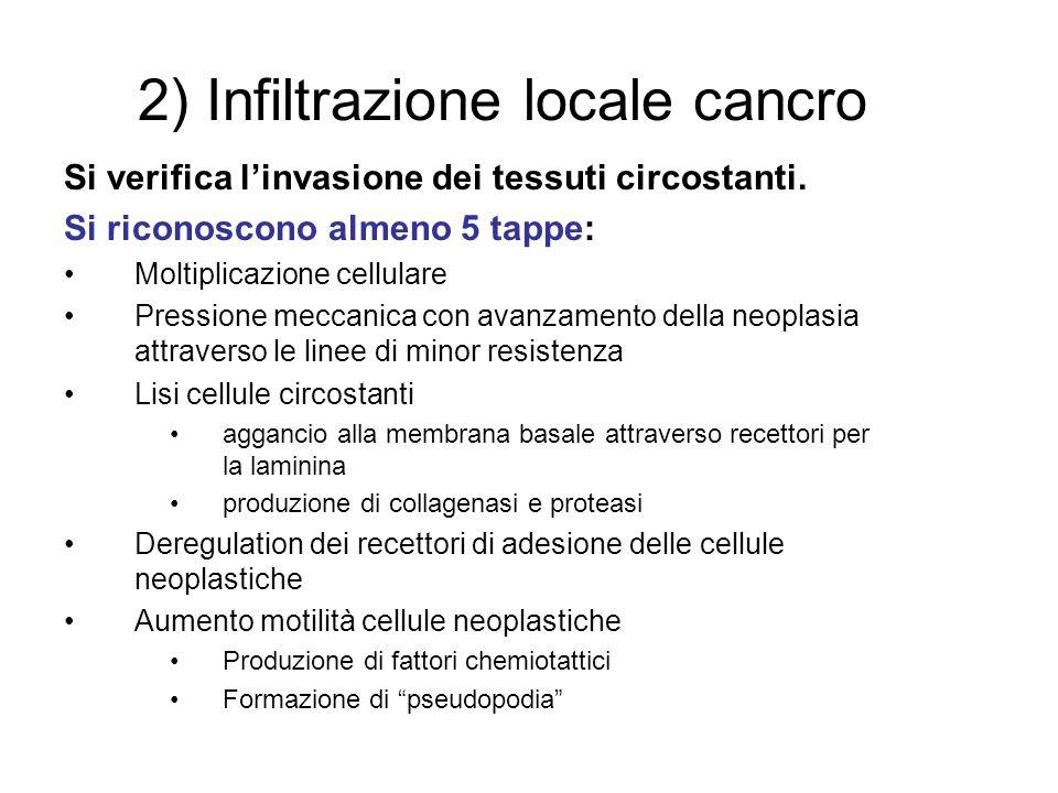 2) Infiltrazione locale cancro