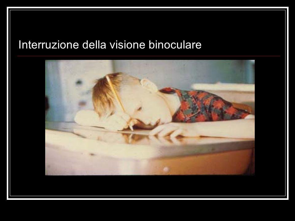 Interruzione della visione binoculare