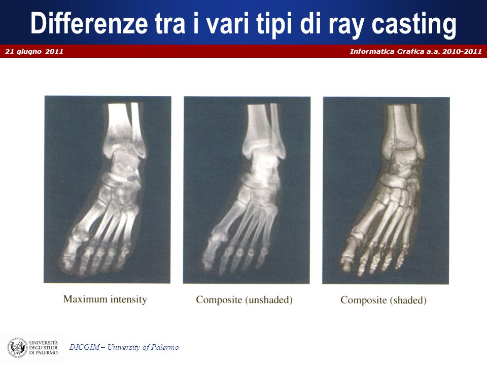 Differenze tra i vari tipi di ray casting