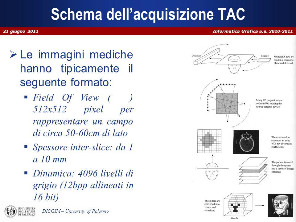 Schema dell'acquisizione TAC