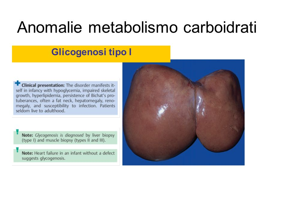 Anomalie metabolismo carboidrati