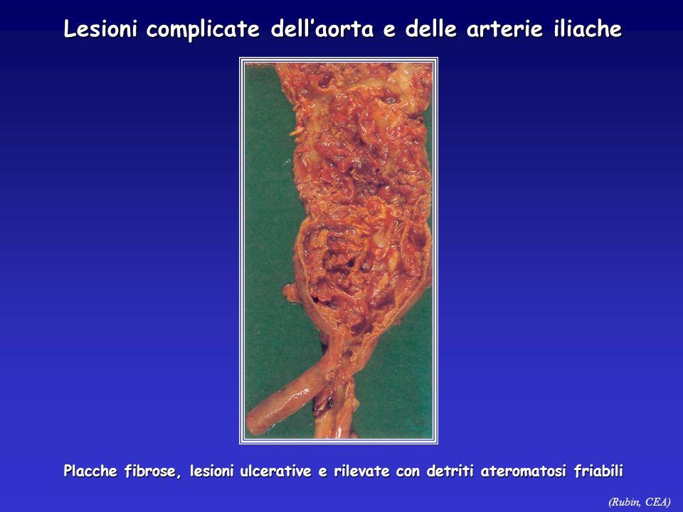 Lesioni complicate dell'aorta e delle arterie iliache