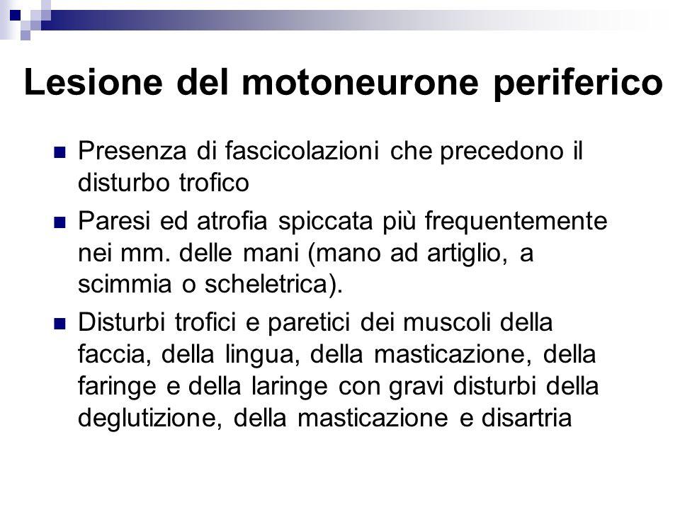 Lesione del motoneurone periferico