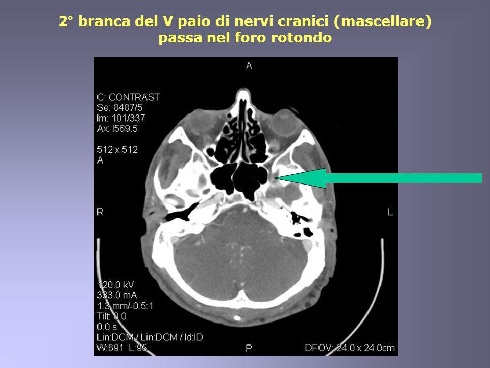 2° branca del V paio di nervi cranici (mascellare) passa nel foro rotondo