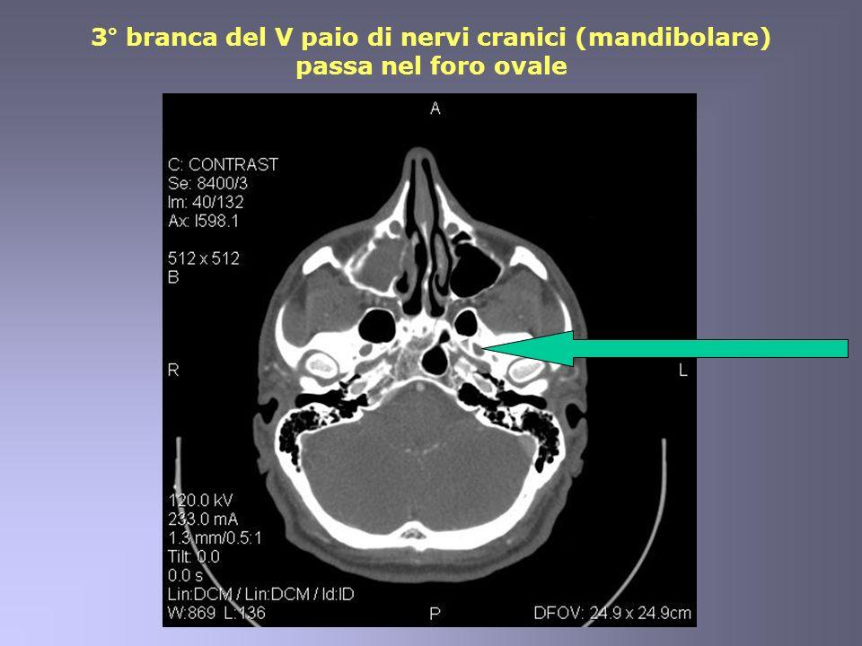 3° branca del V paio di nervi cranici (mandibolare) passa nel foro ovale