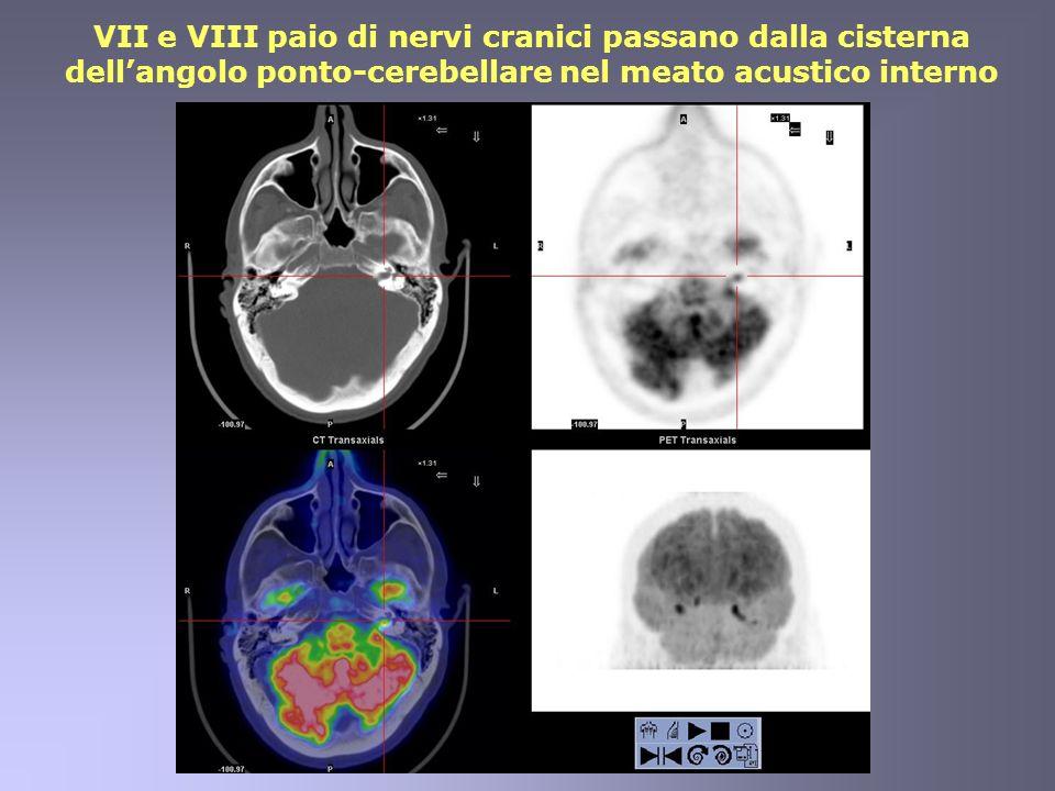 VII e VIII paio di nervi cranici passano dalla cisterna dell'angolo ponto-cerebellare nel meato acustico interno