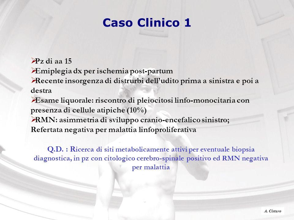Caso Clinico 1 Pz di aa 15 Emiplegia dx per ischemia post-partum
