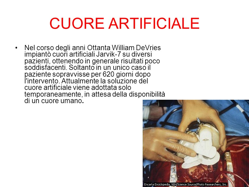 CUORE ARTIFICIALE