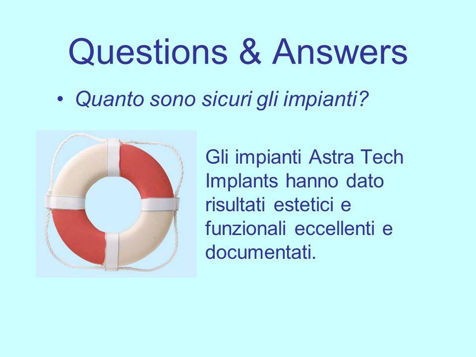 Questions & Answers Quanto sono sicuri gli impianti