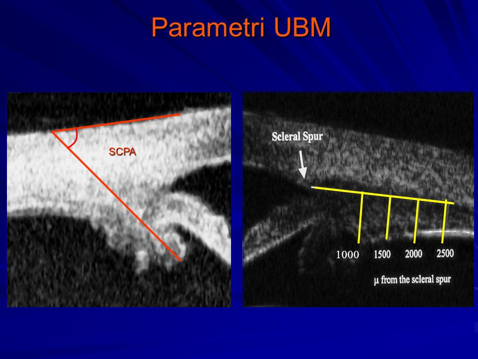 Parametri UBM SCPA 1000