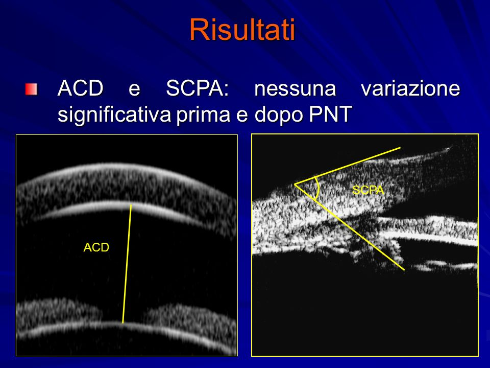 Risultati ACD e SCPA: nessuna variazione significativa prima e dopo PNT SCPA ACD
