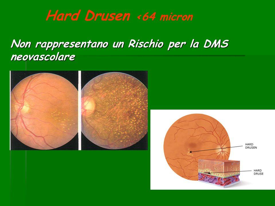 Hard Drusen <64 micron