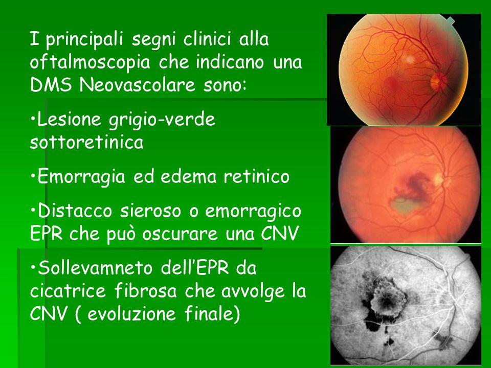 I principali segni clinici alla oftalmoscopia che indicano una DMS Neovascolare sono: