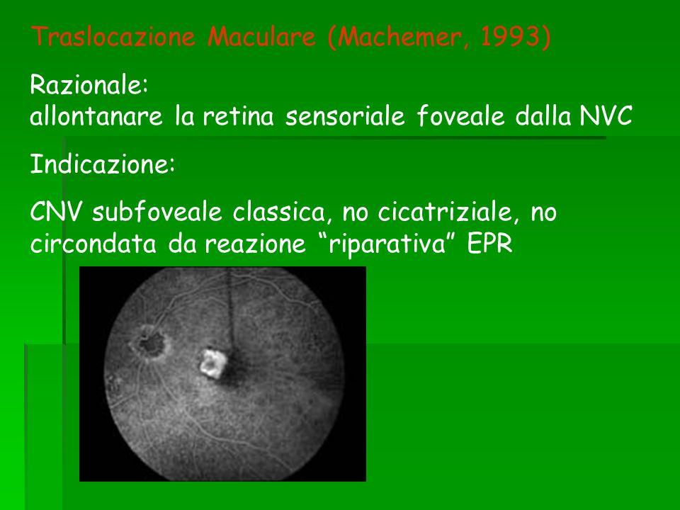 Traslocazione Maculare (Machemer, 1993)
