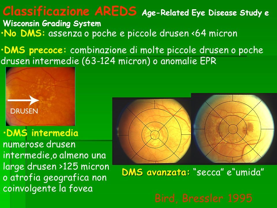 Classificazione AREDS Age-Related Eye Disease Study e Wisconsin Grading System