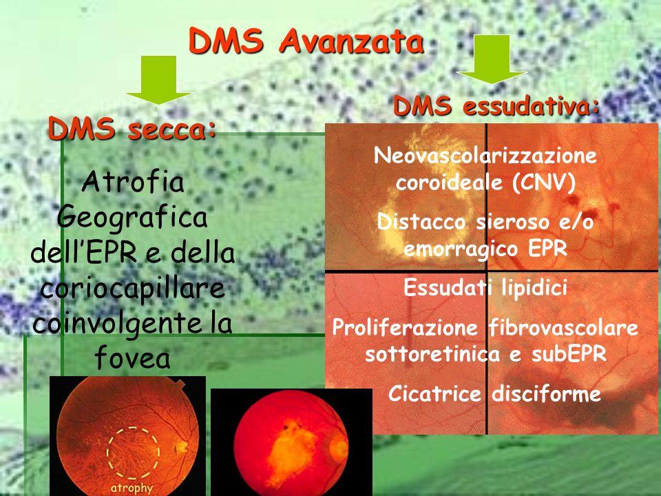 DMS Avanzata DMS secca: