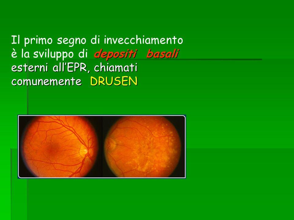 Il primo segno di invecchiamento è la sviluppo di depositi basali esterni all'EPR, chiamati comunemente DRUSEN