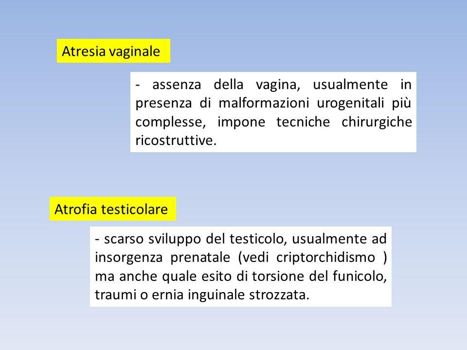 Atresia vaginale