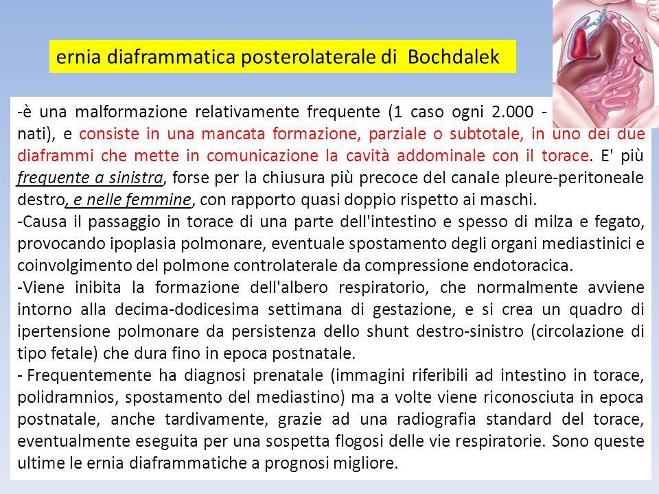 ernia diaframmatica posterolaterale di Bochdalek