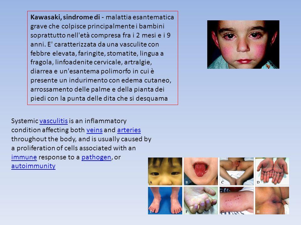 Kawasaki, sindrome di - malattia esantematica grave che colpisce principalmente i bambini soprattutto nell età compresa fra i 2 mesi e i 9 anni. E caratterizzata da una vasculite con febbre elevata, faringite, stomatite, lingua a fragola, linfoadenite cervicale, artralgie, diarrea e un esantema polimorfo in cui è presente un indurimento con edema cutaneo, arrossamento delle palme e della pianta dei piedi con la punta delle dita che si desquama
