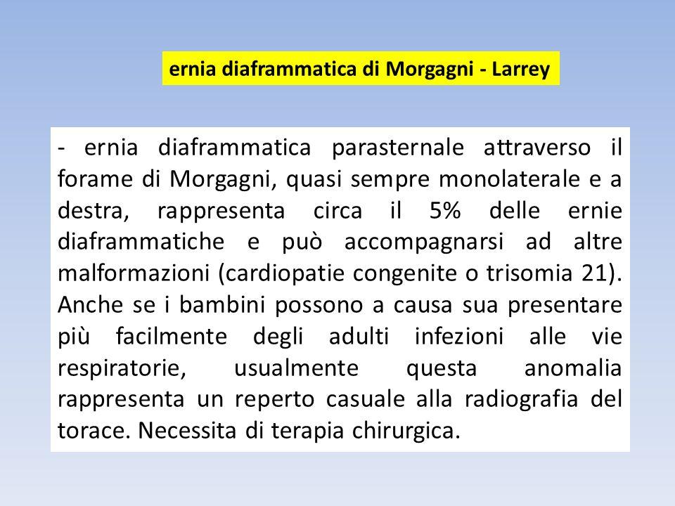 ernia diaframmatica di Morgagni - Larrey