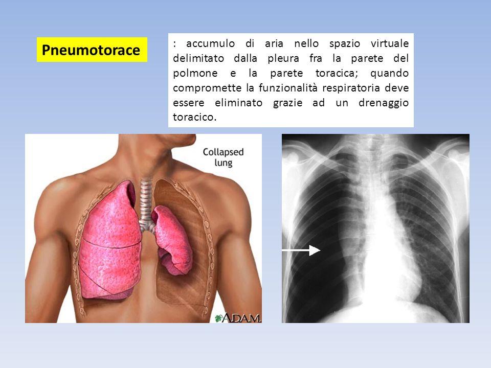 : accumulo di aria nello spazio virtuale delimitato dalla pleura fra la parete del polmone e la parete toracica; quando compromette la funzionalità respiratoria deve essere eliminato grazie ad un drenaggio toracico.